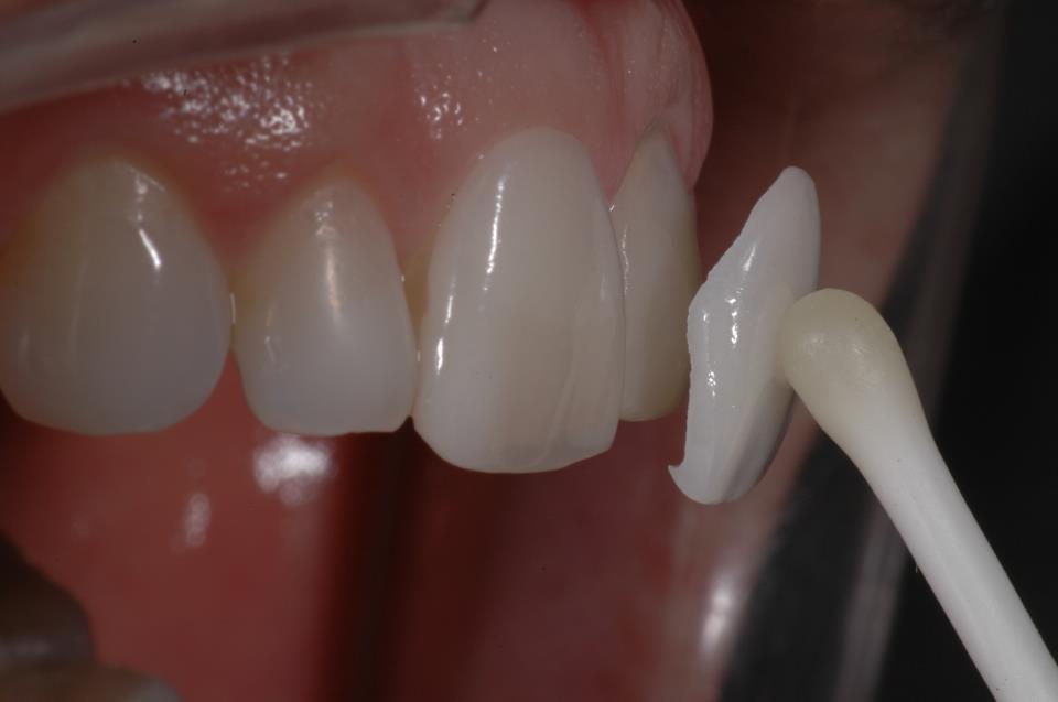 Faccette dentali in ceramica estetiche – Metal free