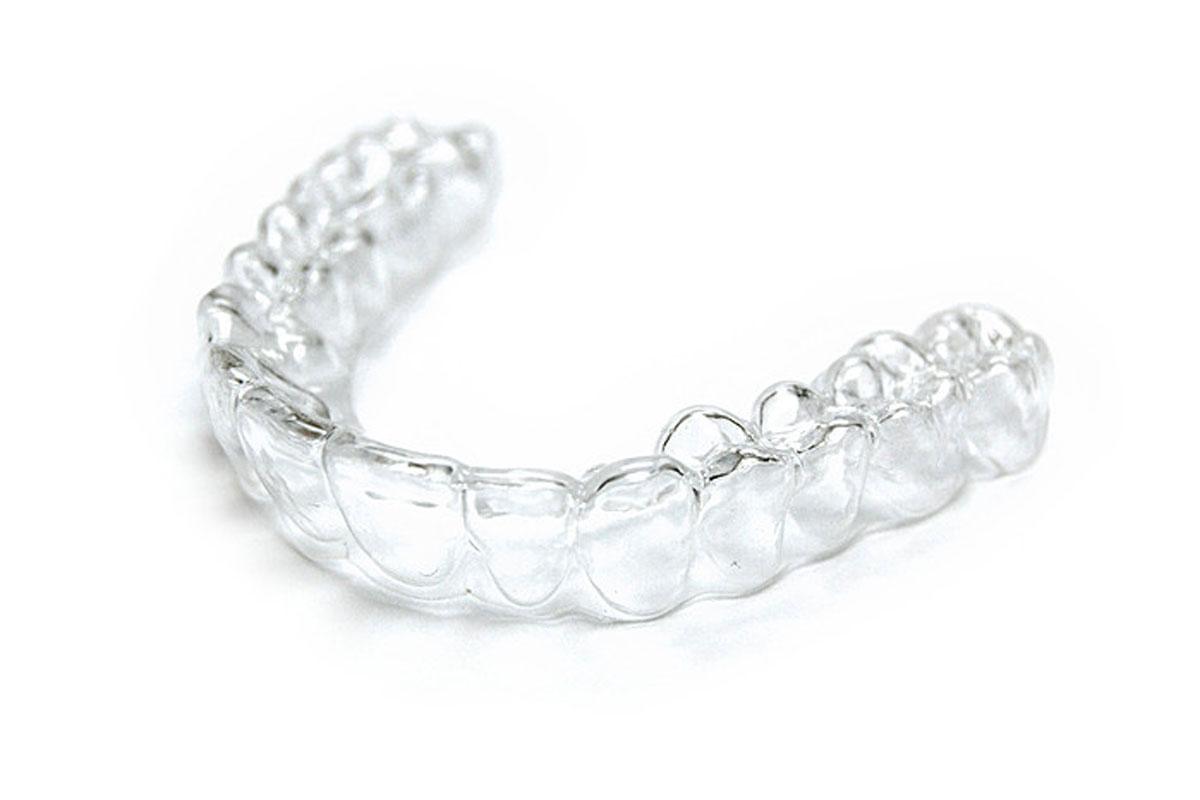 Bite personalizzati dentali cosa sono e quali utilizzare